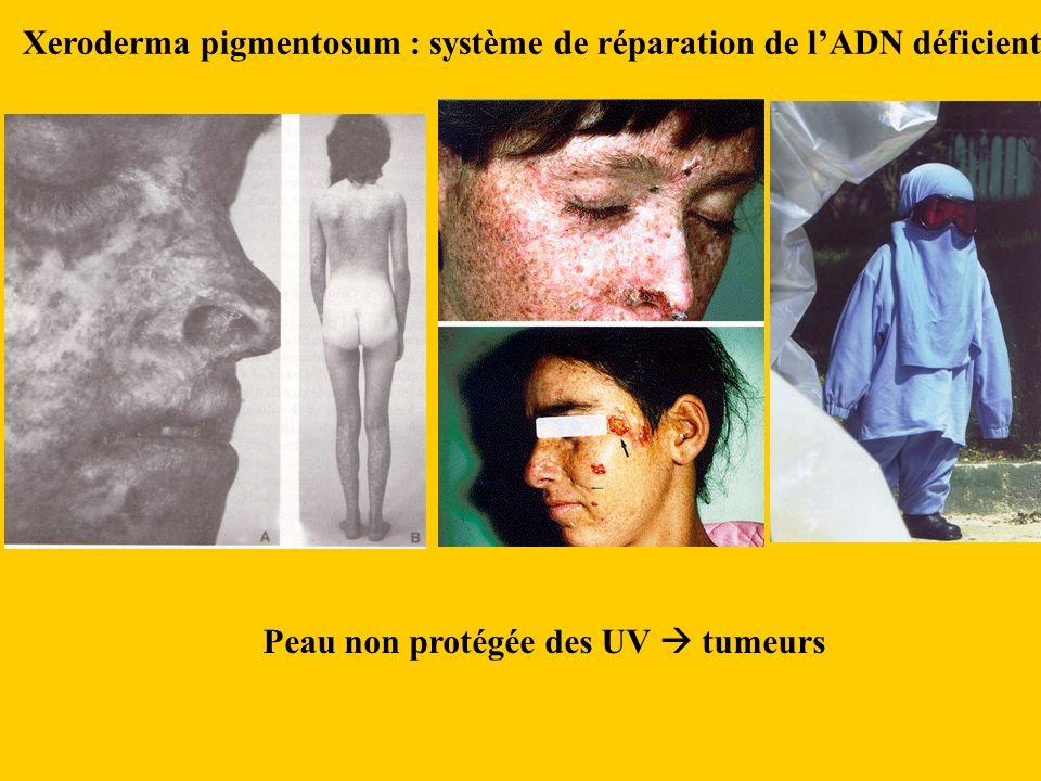 Xeroderma pigmentosum : système de réparation de l'ADN déficient