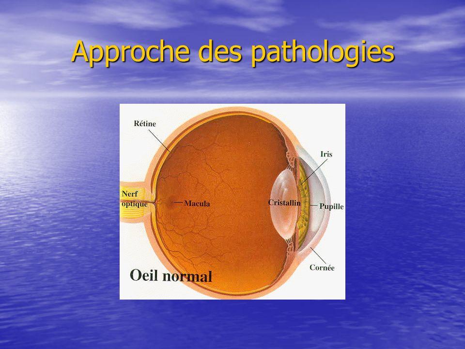 Approche des pathologies