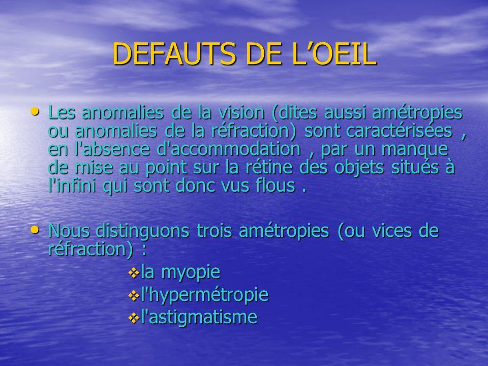 DEFAUTS DE L'OEIL