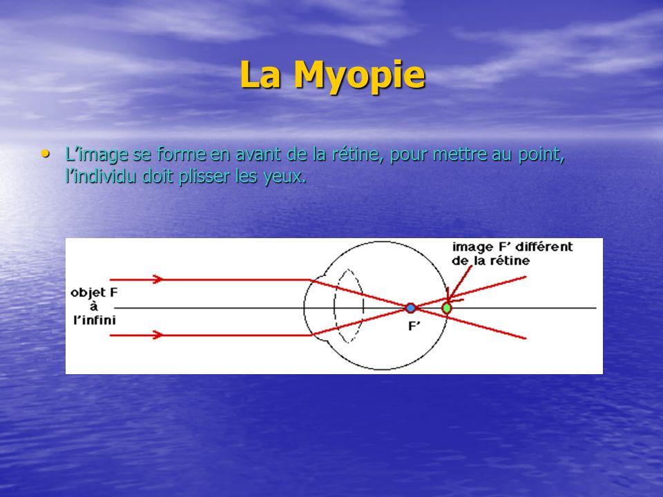 La Myopie L'image se forme en avant de la rétine, pour mettre au point, l'individu doit plisser les yeux.