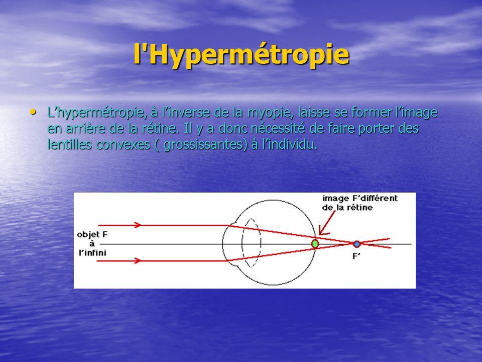 l Hypermétropie