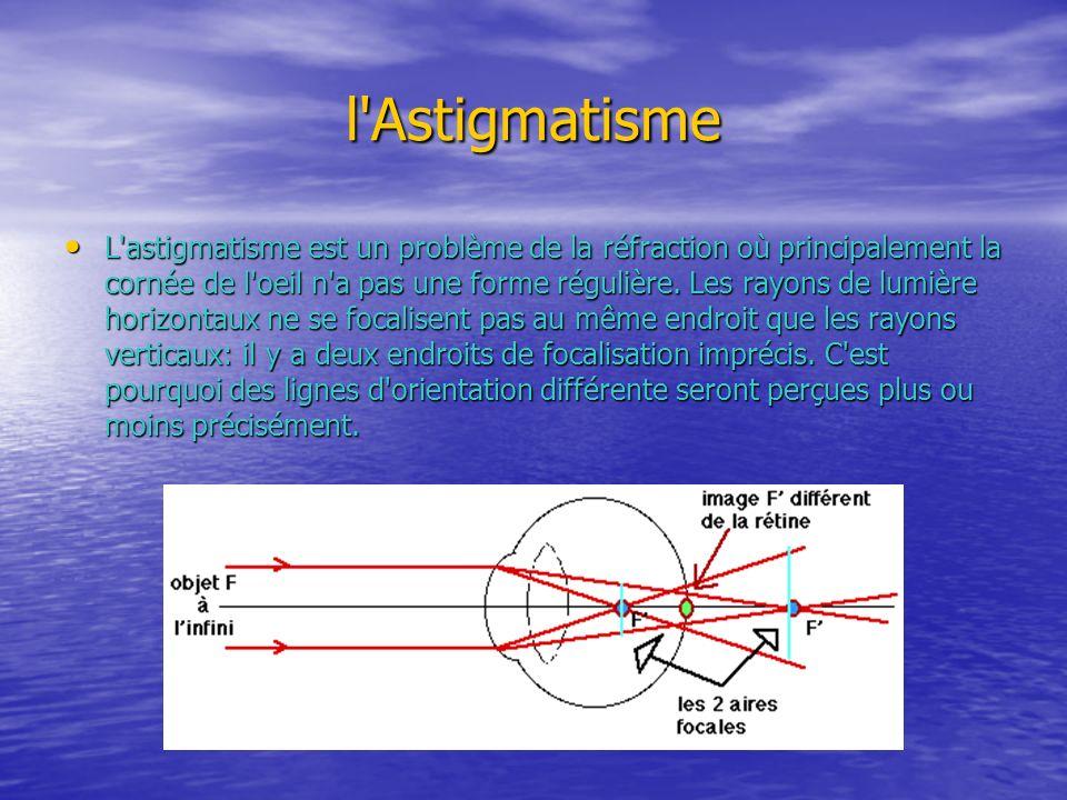 l Astigmatisme