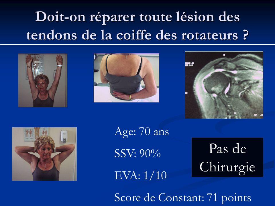 Doit-on réparer toute lésion des tendons de la coiffe des rotateurs