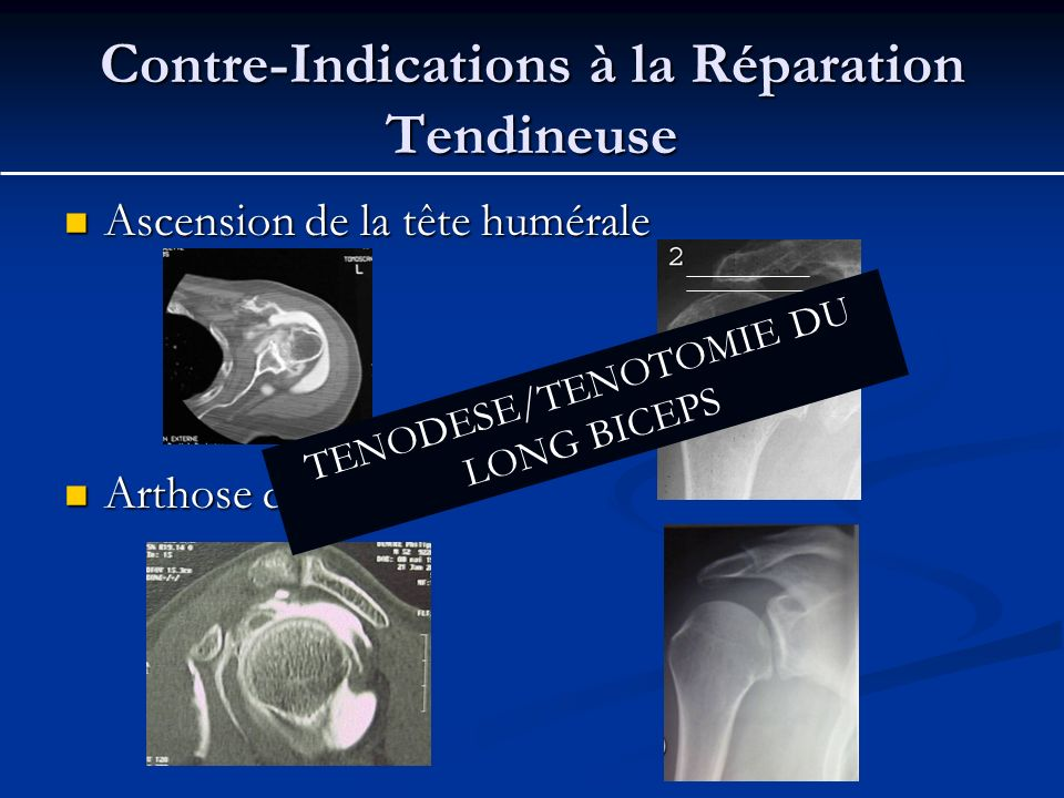 Contre-Indications à la Réparation Tendineuse