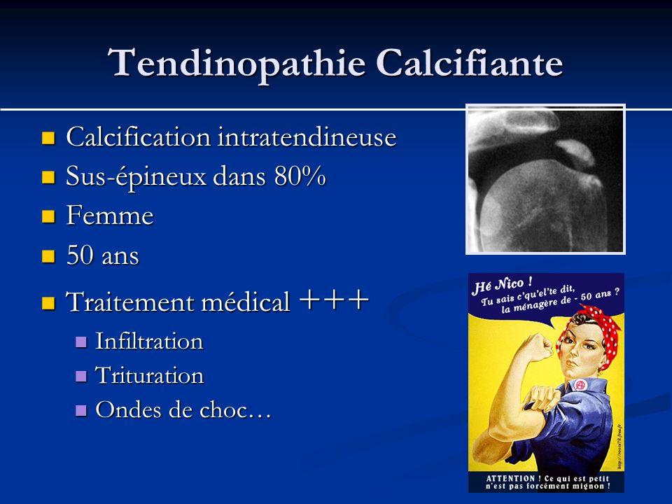 Tendinopathie Calcifiante