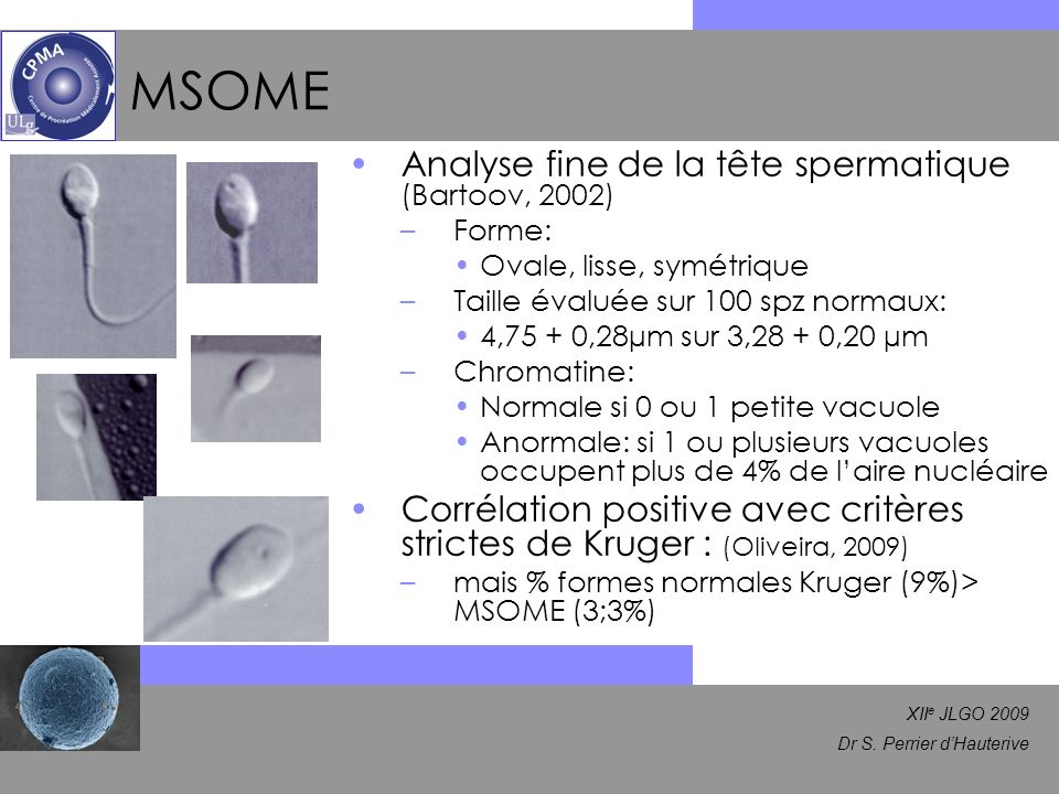 MSOME Analyse fine de la tête spermatique (Bartoov, 2002)