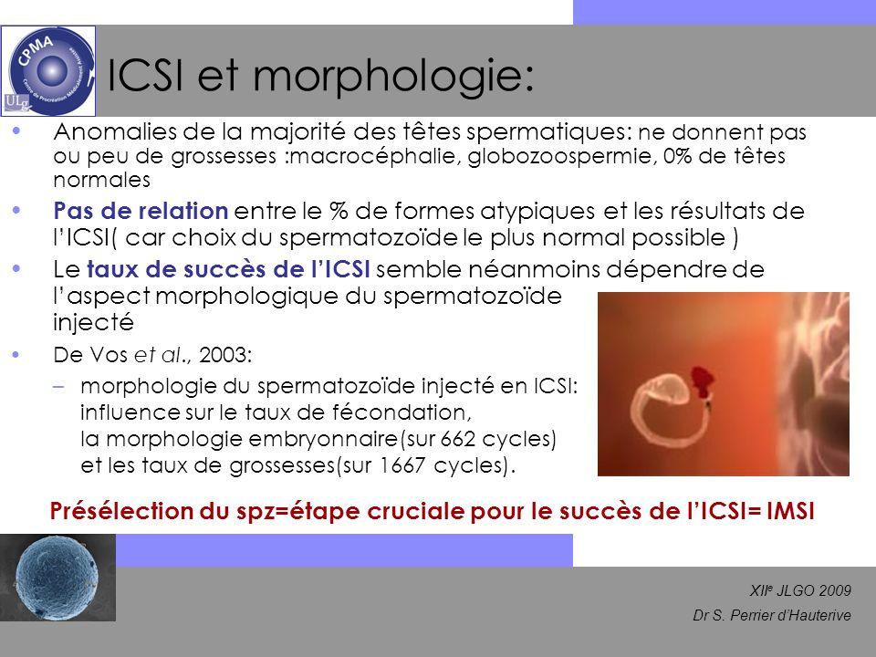 Présélection du spz=étape cruciale pour le succès de l'ICSI= IMSI