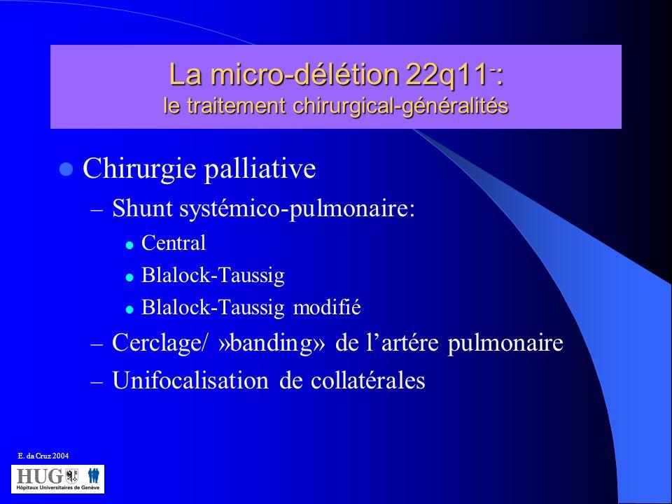 La micro-délétion 22q11-: le traitement chirurgical-généralités