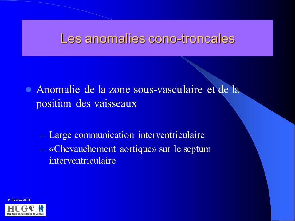 Les anomalies cono-troncales