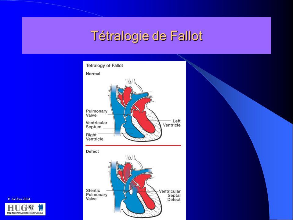 Tétralogie de Fallot E. da Cruz 2004