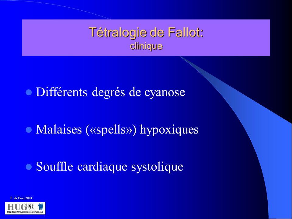 Tétralogie de Fallot: clinique
