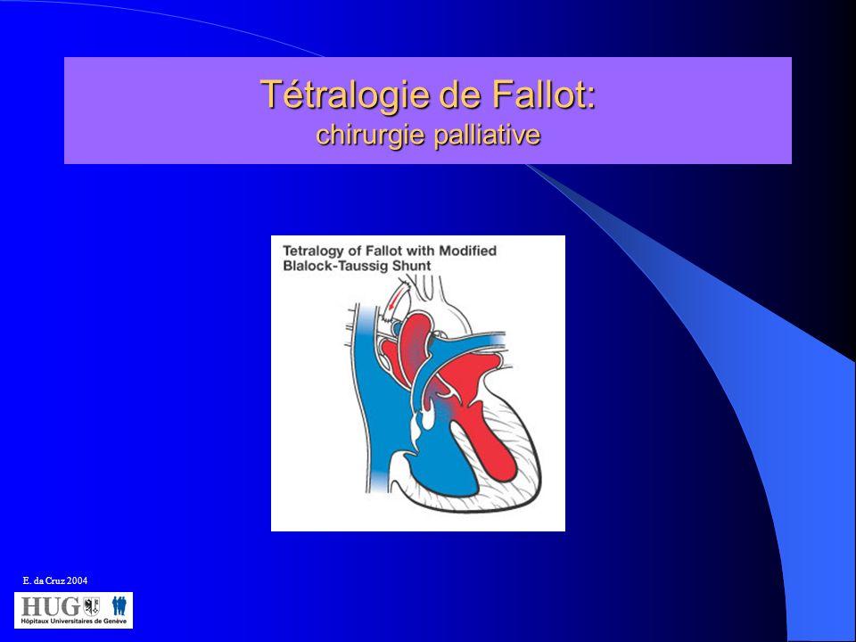 Tétralogie de Fallot: chirurgie palliative