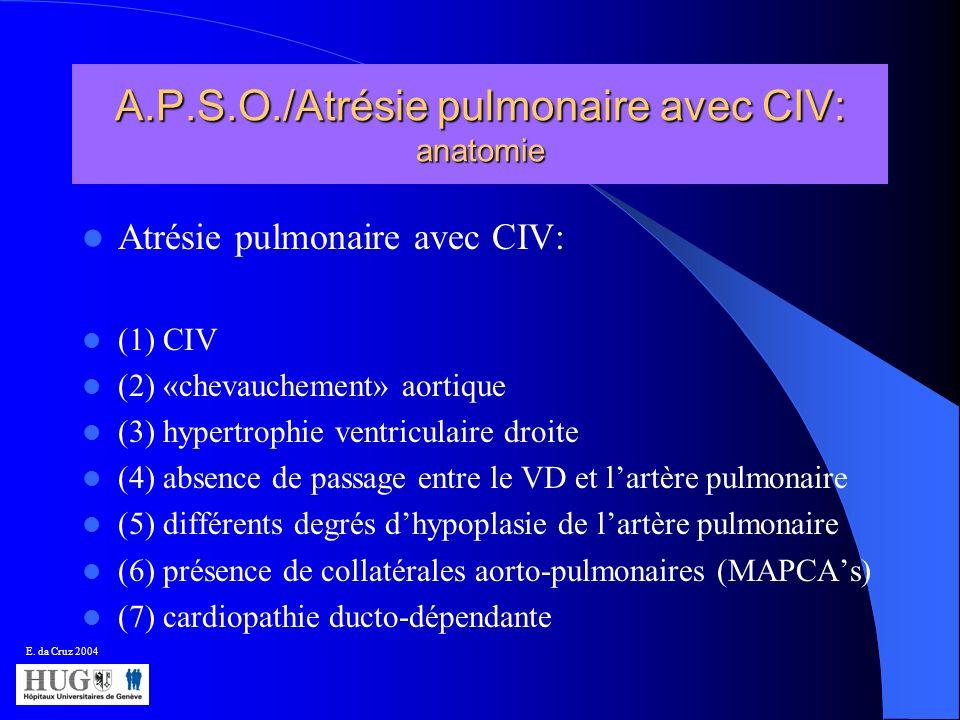 A.P.S.O./Atrésie pulmonaire avec CIV: anatomie