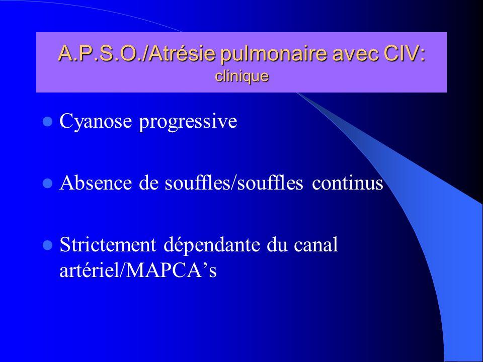 A.P.S.O./Atrésie pulmonaire avec CIV: clinique