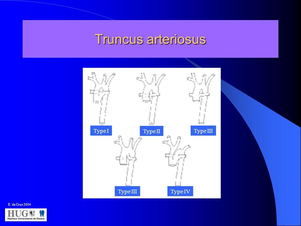 Truncus arteriosus Type 1 Type I Type II Type III Type III Type IV