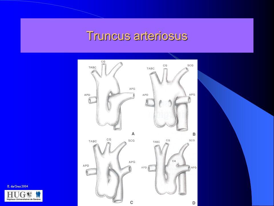 Truncus arteriosus E. da Cruz 2004