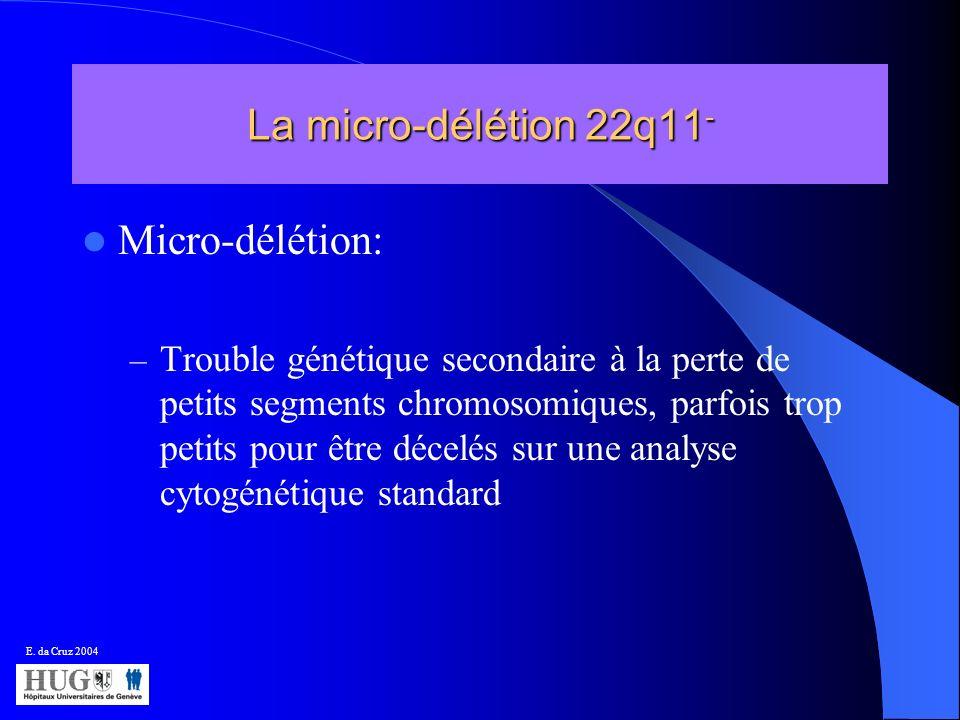 La micro-délétion 22q11- Micro-délétion: