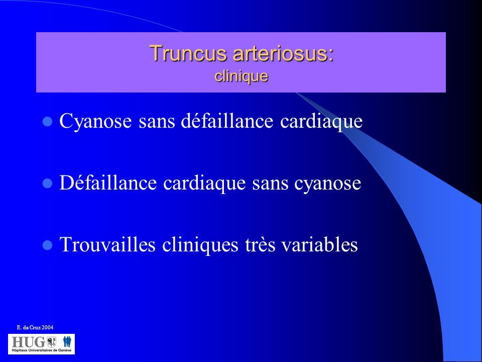 Truncus arteriosus: clinique