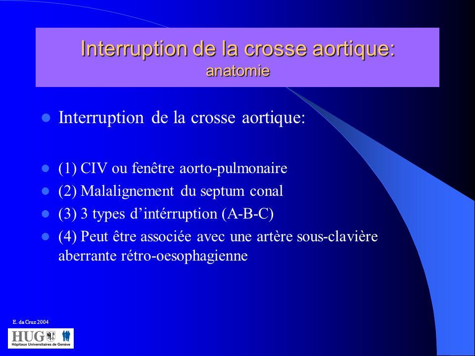 Interruption de la crosse aortique: anatomie