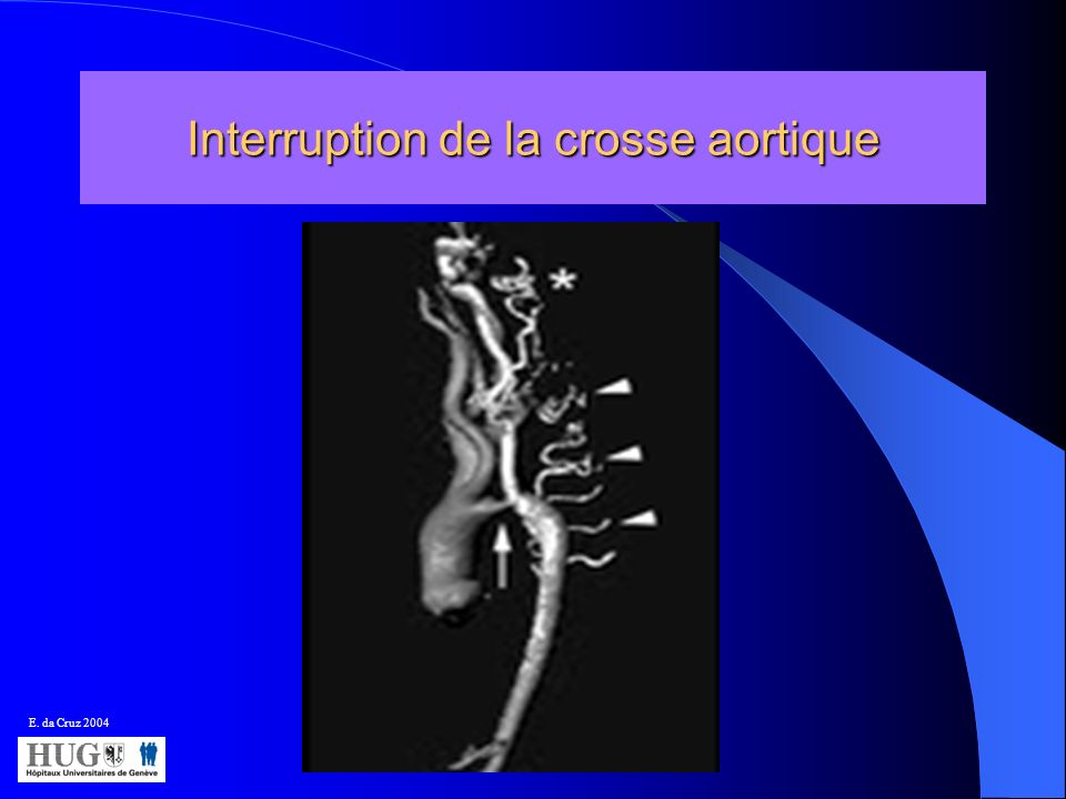 Interruption de la crosse aortique