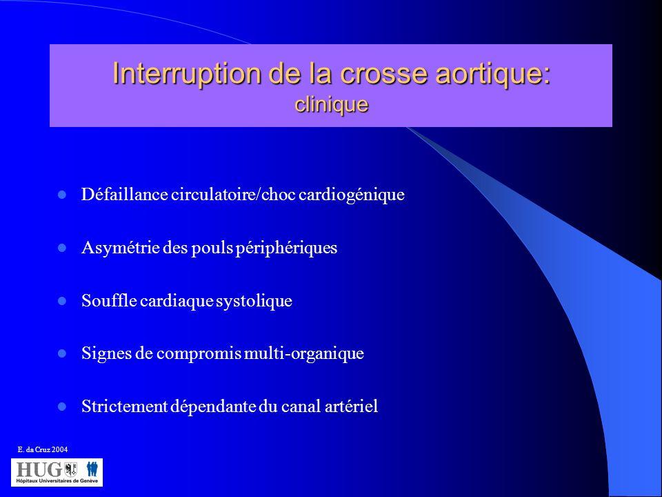 Interruption de la crosse aortique: clinique
