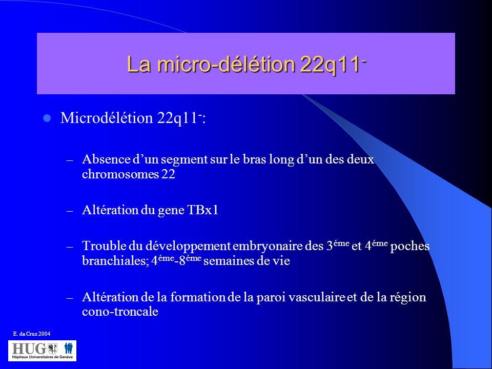 La micro-délétion 22q11- Microdélétion 22q11-: