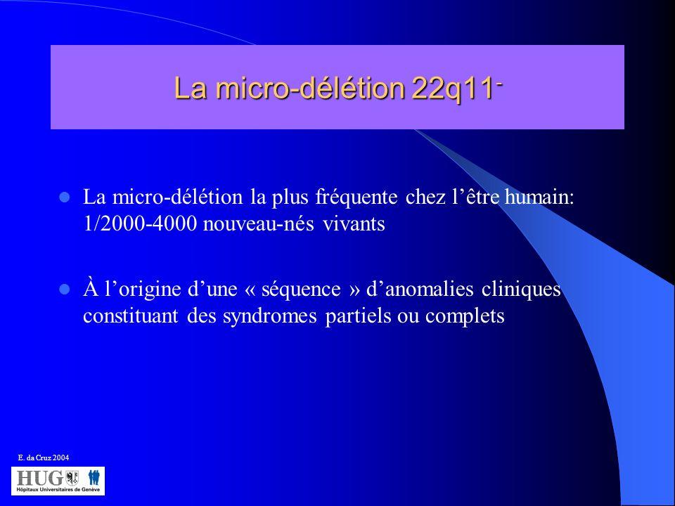 La micro-délétion 22q11- La micro-délétion la plus fréquente chez l'être humain: 1/2000-4000 nouveau-nés vivants.
