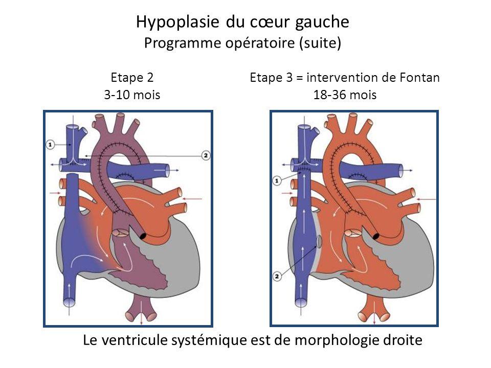 Hypoplasie du cœur gauche Programme opératoire (suite)