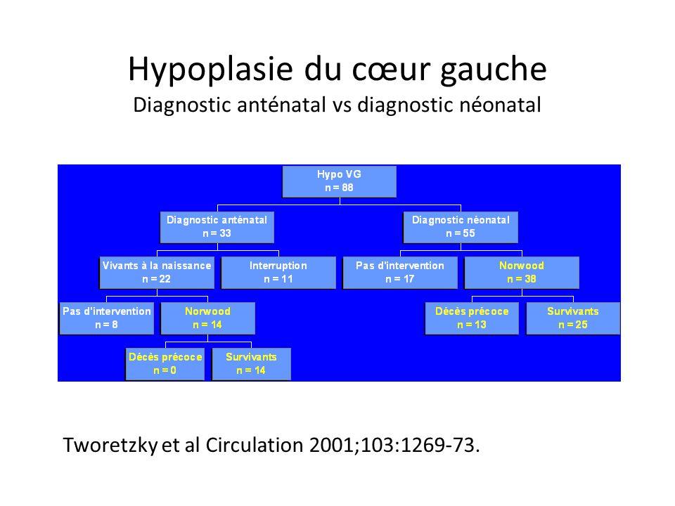 Hypoplasie du cœur gauche Diagnostic anténatal vs diagnostic néonatal