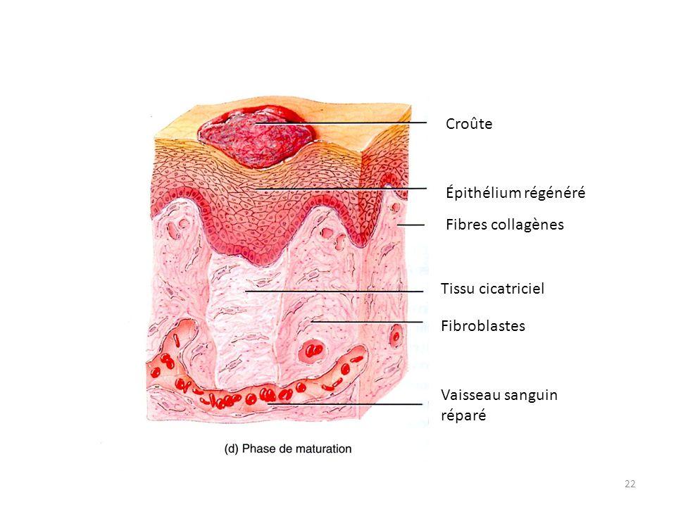Croûte Épithélium régénéré Fibres collagènes Tissu cicatriciel Fibroblastes Vaisseau sanguin réparé