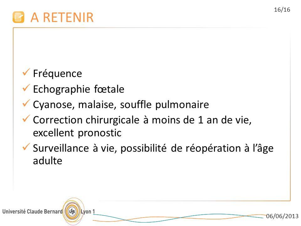 A RETENIR Fréquence Echographie fœtale