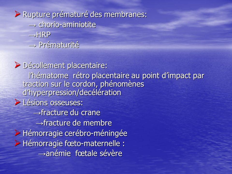 Rupture prématuré des membranes:
