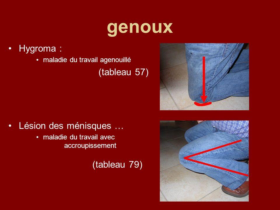 genoux Hygroma : (tableau 57) Lésion des ménisques …