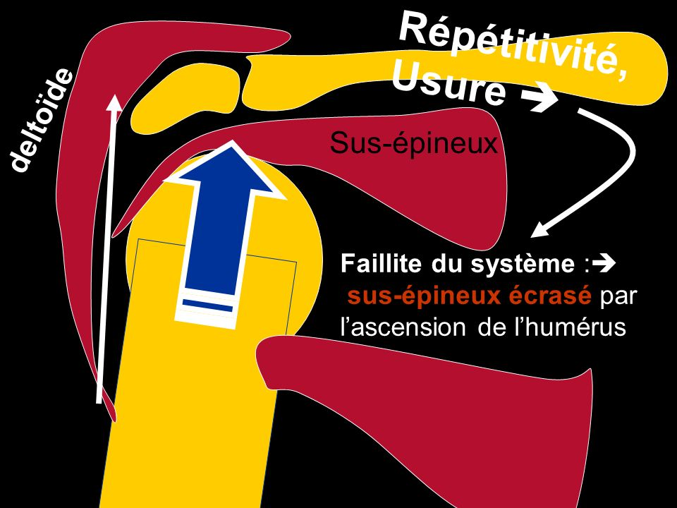 Répétitivité, Usure  deltoïde Sus-épineux Faillite du système :