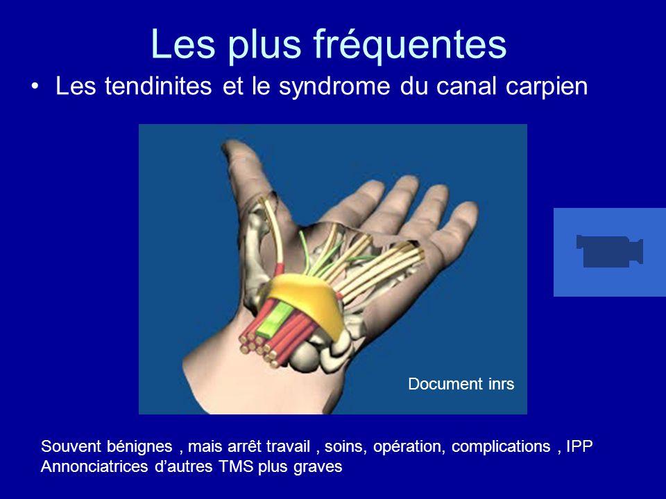 Les plus fréquentes Les tendinites et le syndrome du canal carpien