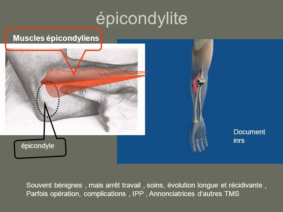 épicondylite Muscles épicondyliens Document inrs épicondyle