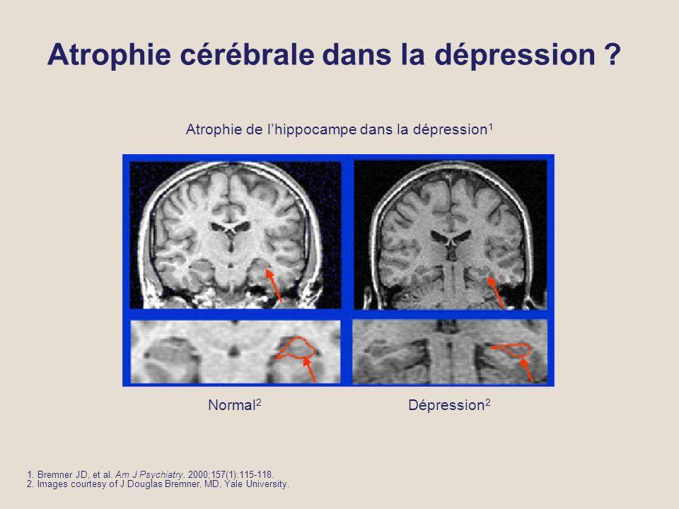 Atrophie cérébrale dans la dépression