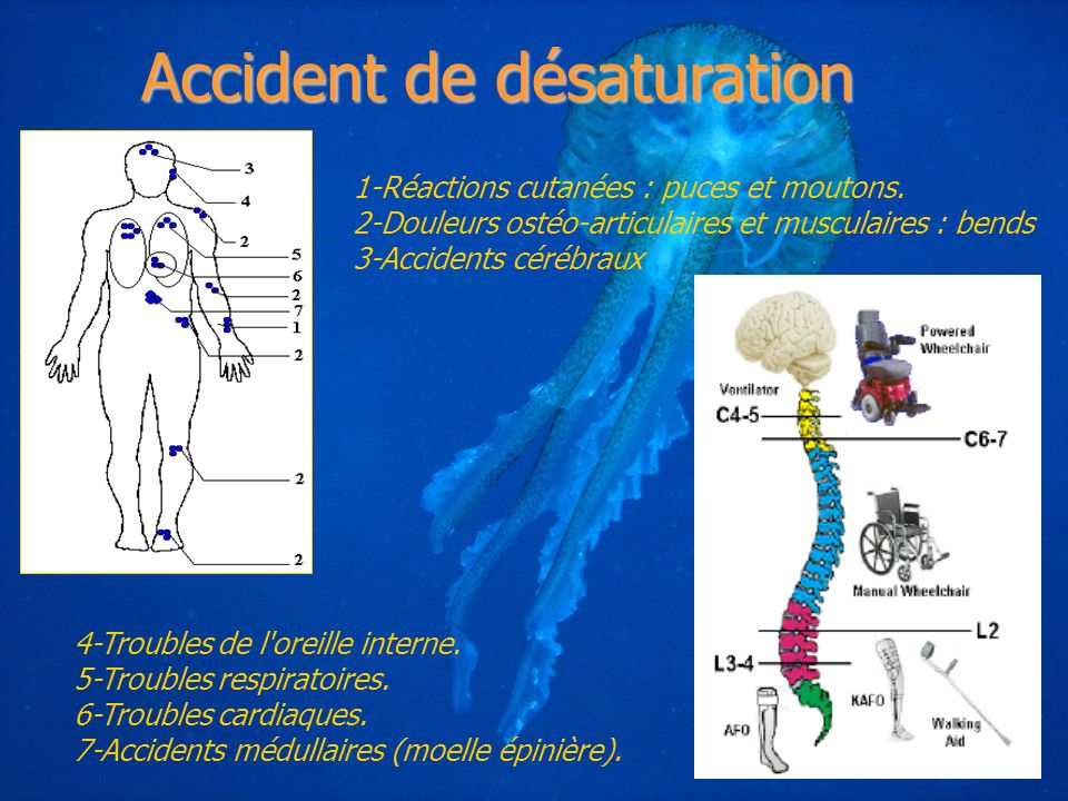 Accident de désaturation