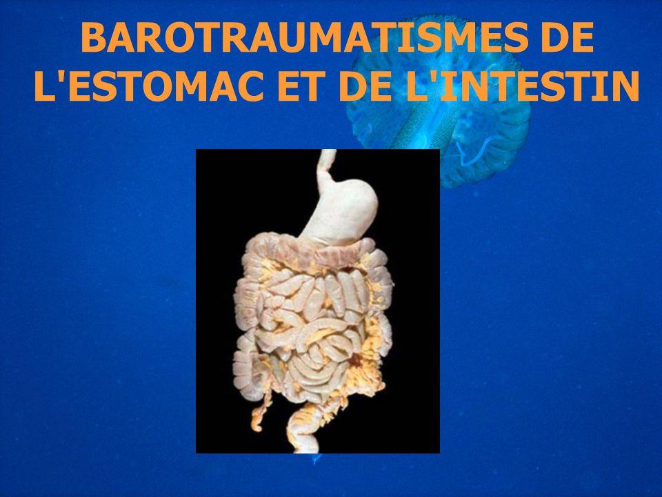 BAROTRAUMATISMES DE L ESTOMAC ET DE L INTESTIN