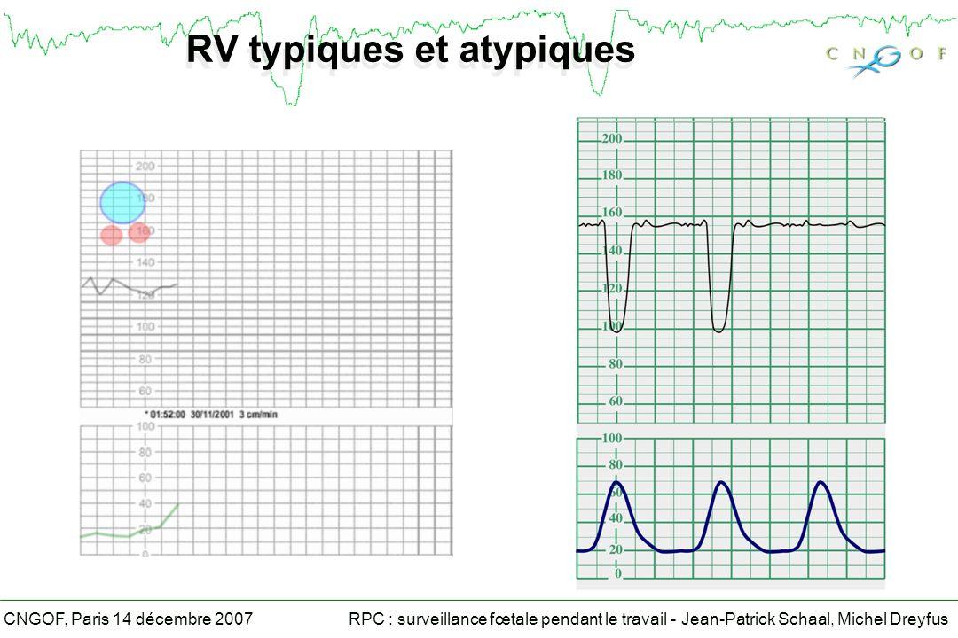 RV typiques et atypiques