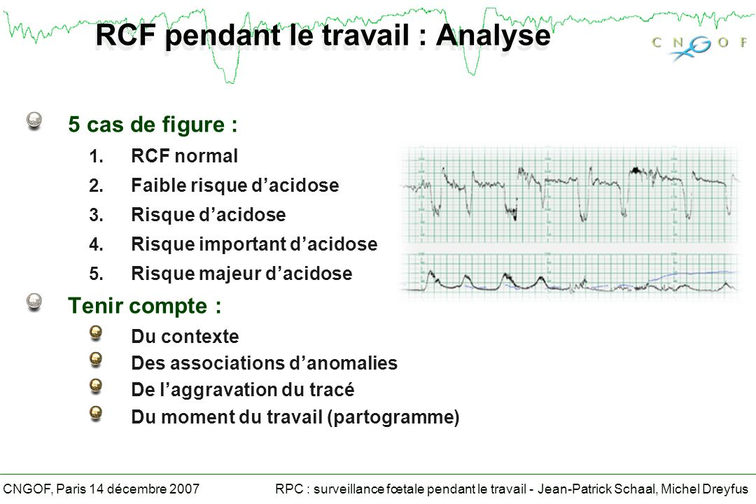 RCF pendant le travail : Analyse