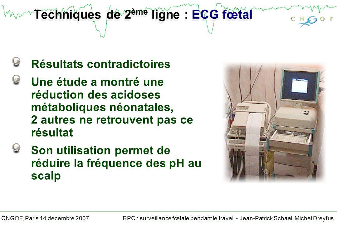 Techniques de 2ème ligne : ECG fœtal