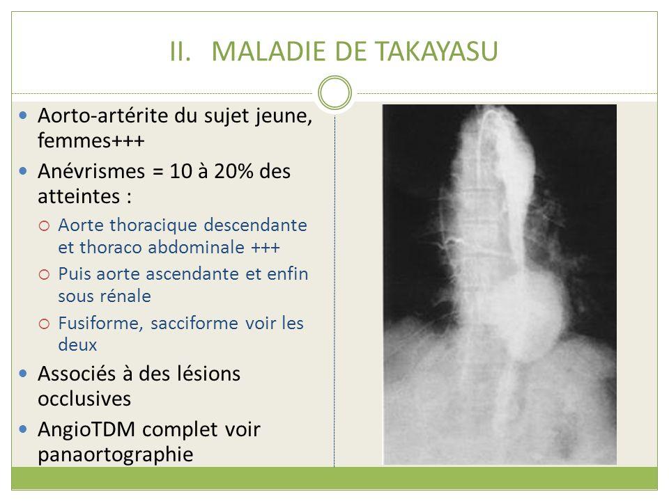 MALADIE DE TAKAYASU Aorto-artérite du sujet jeune, femmes+++