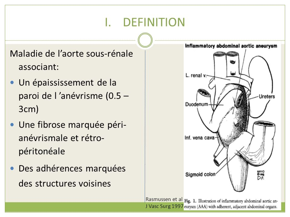 DEFINITION Maladie de l'aorte sous-rénale associant: