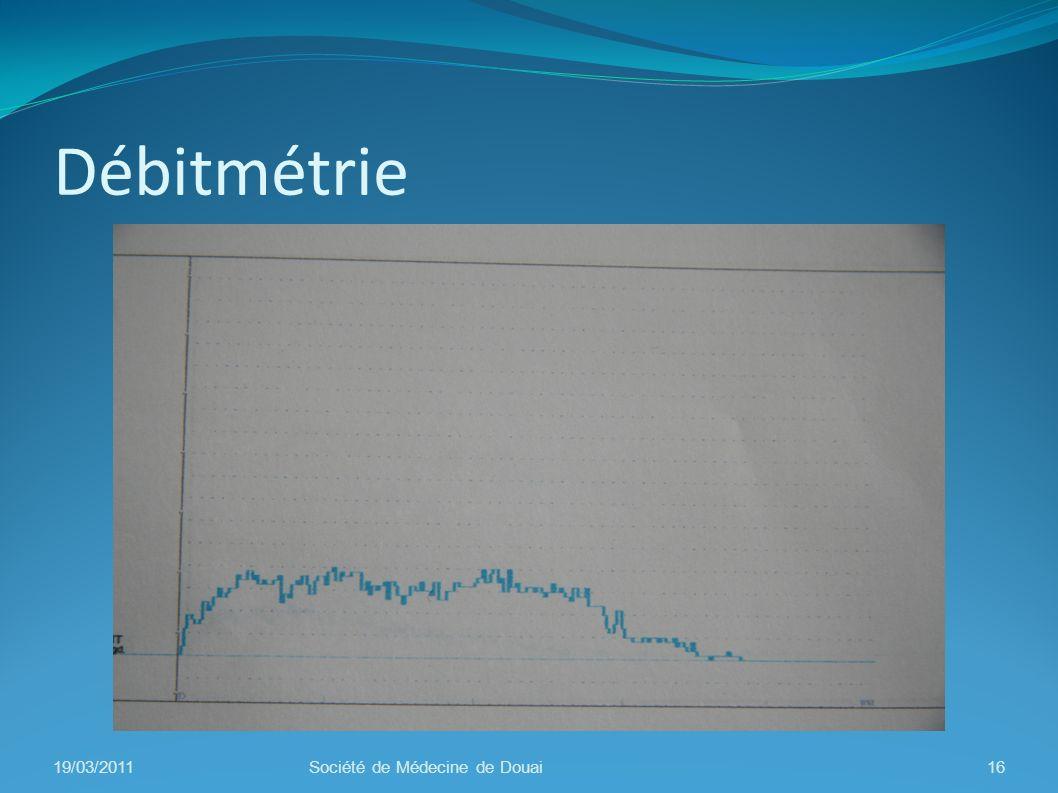 Débitmétrie 19/03/2011 Société de Médecine de Douai