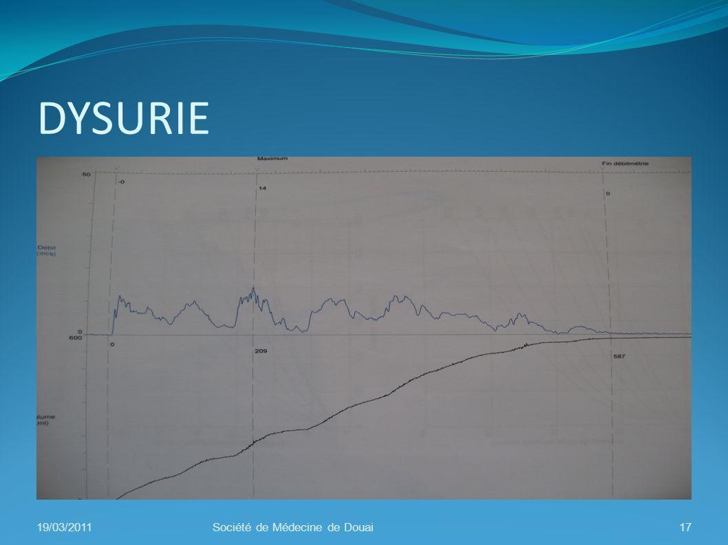 DYSURIE 19/03/2011 Société de Médecine de Douai