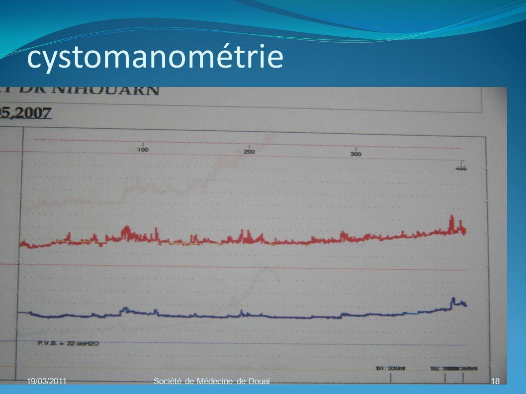 cystomanométrie 19/03/2011 Société de Médecine de Douai