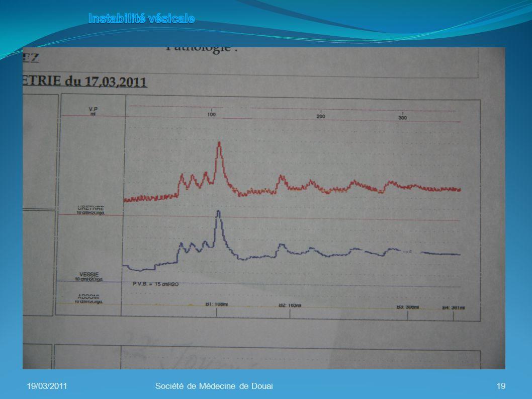 Instabilité vésicale 19/03/2011 Société de Médecine de Douai