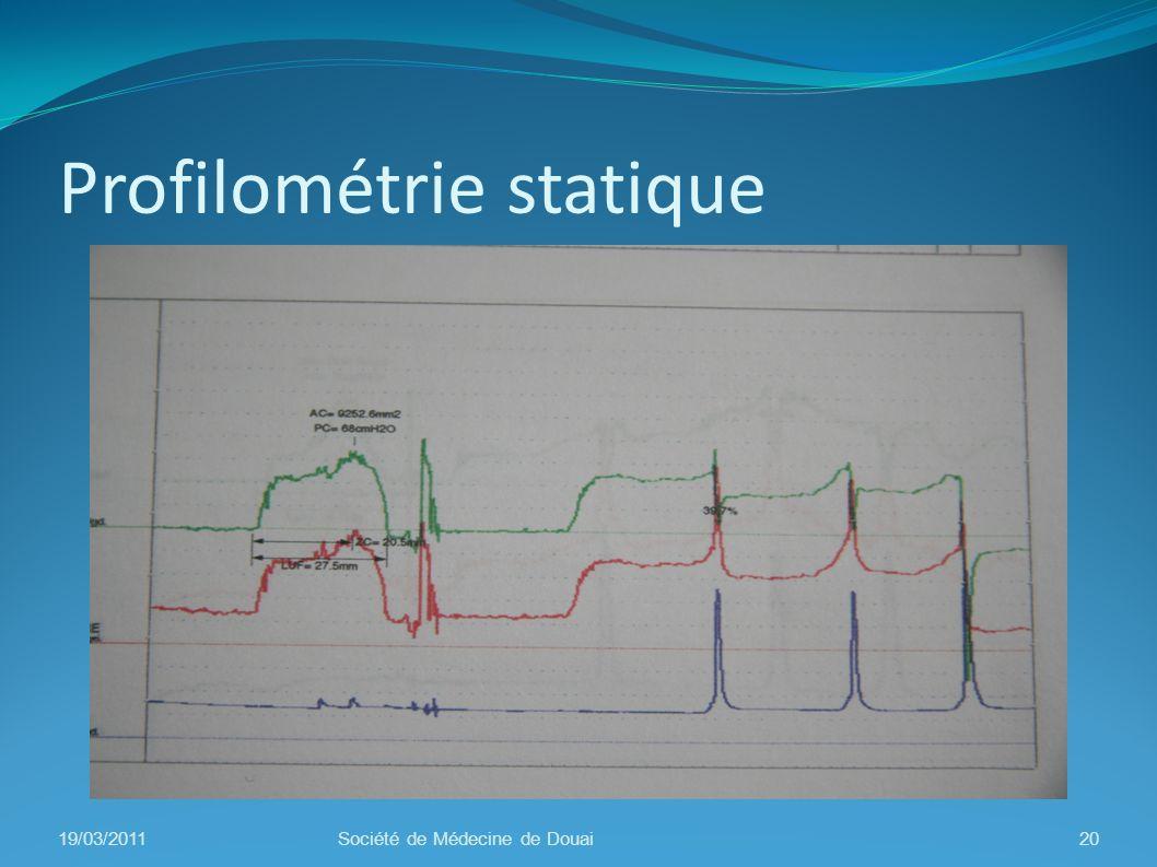 Profilométrie statique