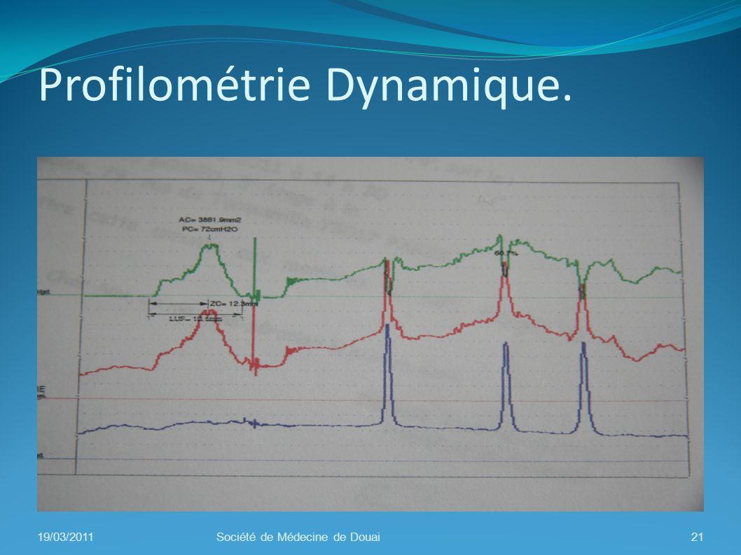 Profilométrie Dynamique.